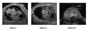 sonograph images