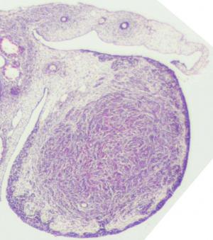 Ovary, mesonephric & Grade 0 paramesonephric duct regression, stage 23, histology, cross section, 3.2x