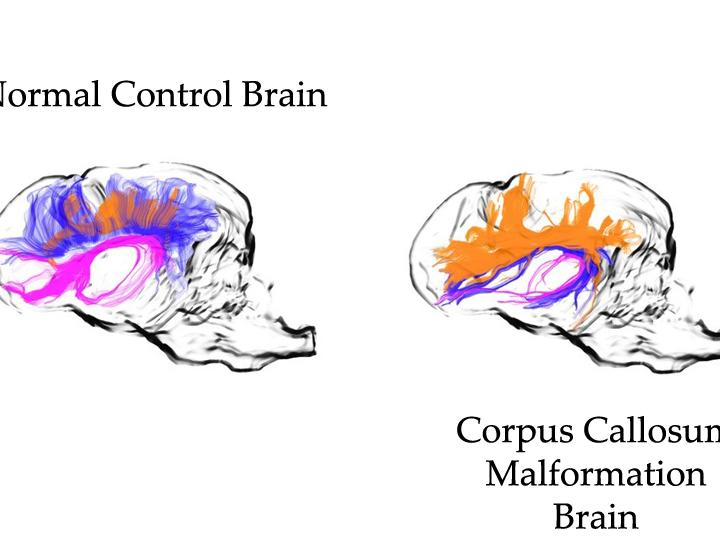 Side by side neuroimaging of a normal canine brain and a brain with copus callosum malformation