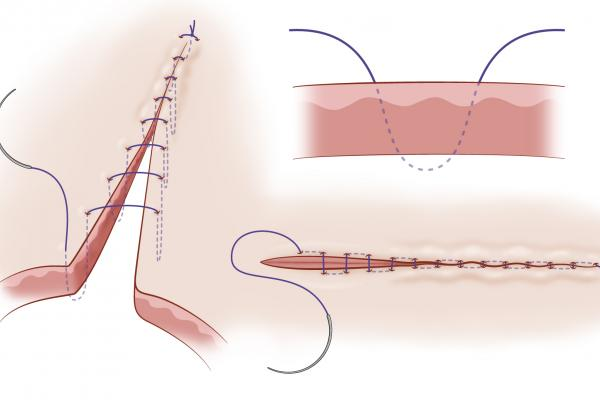 diagram on connell suture pattern
