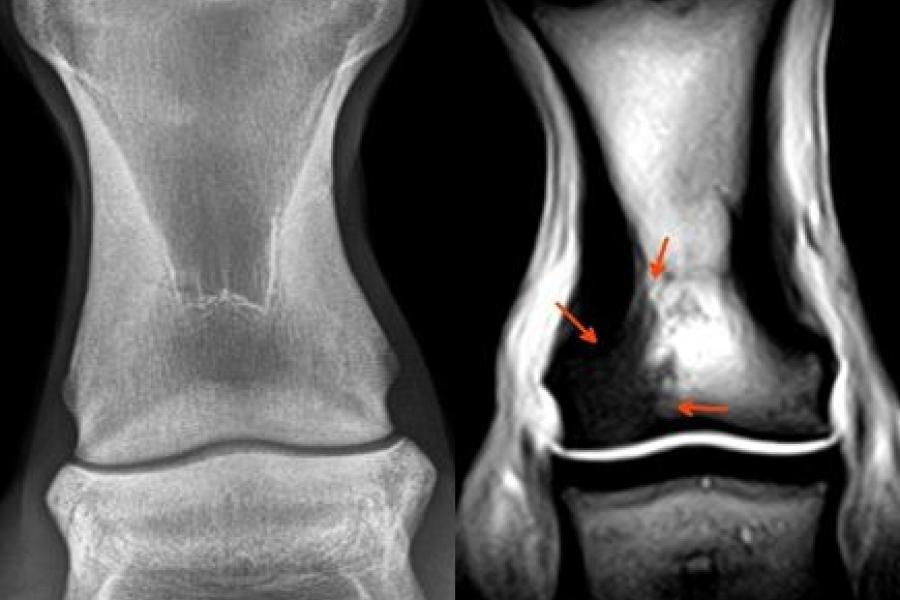 Pastern radiograph and MRI